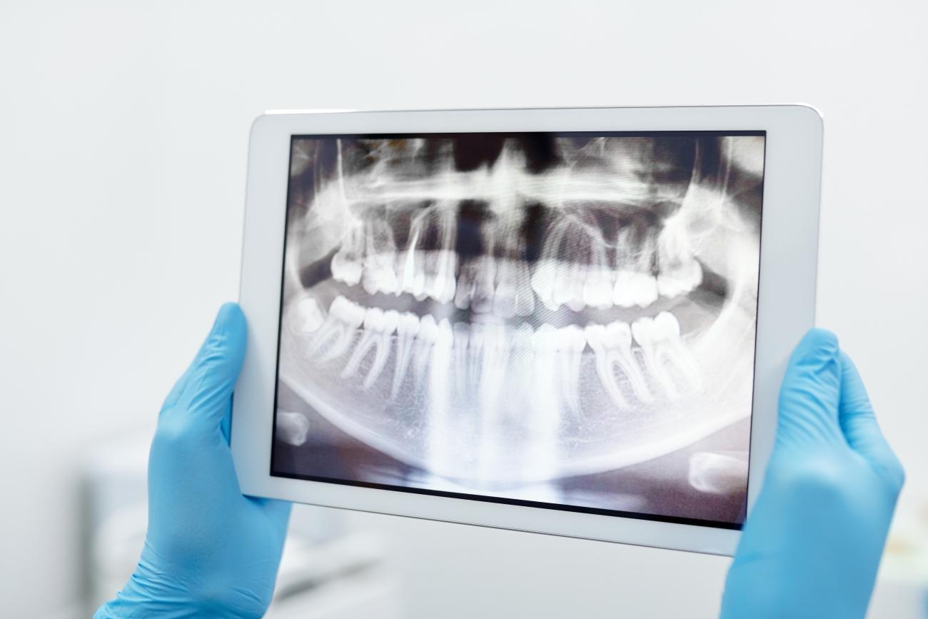 Program do gabinetu stomatologicznego – który wybrać?